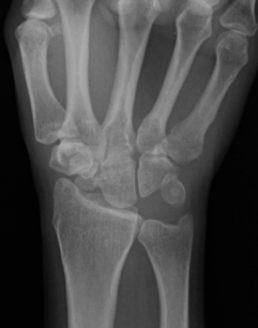 patologie-osteoarticolari-polso-e-mano-fig3